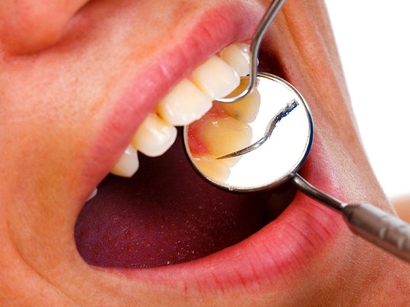 Denti sani e cuore sano, esiste una relazione?