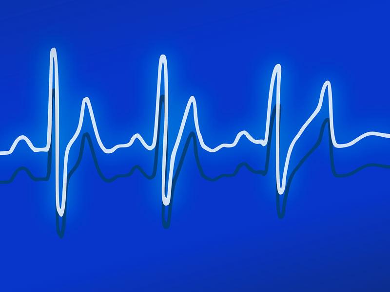 Scompenso cardiaco, la morte cardiaca improvvisa è una conseguenza, ma si può prevenire